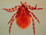 The deer tick, that nasty little thing that digs its head into and sucks your blood. Photo from Wikimedia Commons.